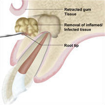 An apicoectomy procedure is performed