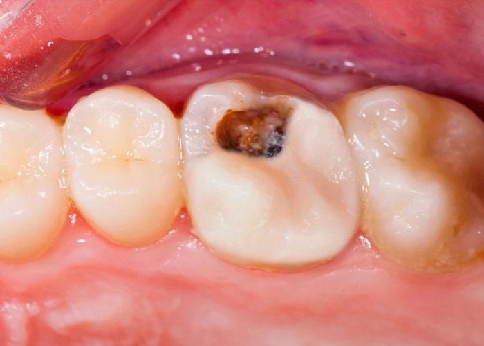 Cosmetic Dentistry | Mark George DDS