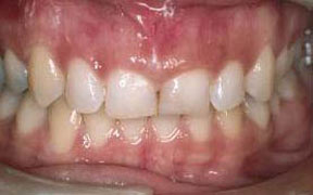 Periodontal Gallery
