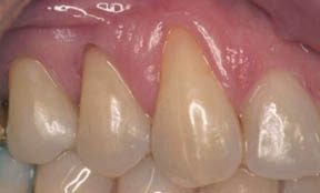 Fillings Gallery Case 10 Composite Bonding