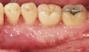 Periodontal Gallery - Tori Removal