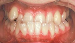 Orthodontic Gallery Case 2