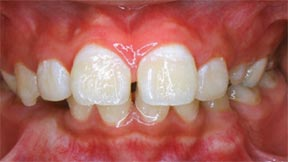 Orthodontic Gallery Case 4