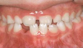 Orthodontic Gallery Case 5