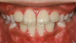 Orthodontic Gallery Case 6