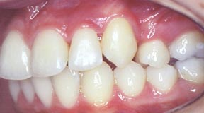 Orthodontic Gallery Case 7