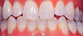 Teeth Whitening Gallery Case 1