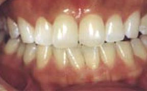 Teeth Whitening Gallery Case 2