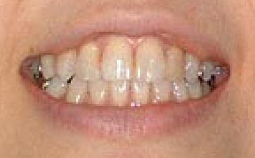 Teeth Whitening Gallery Case 3